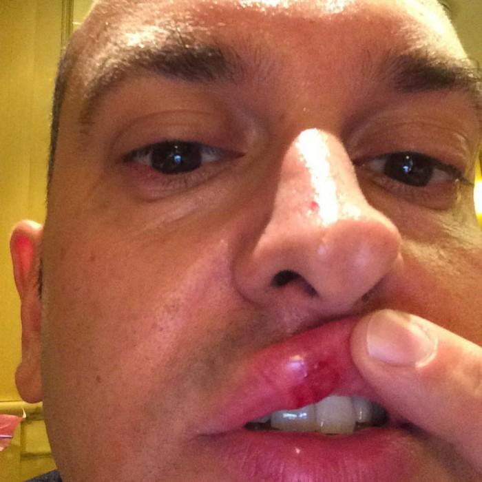 Andrea Gori mostra il labbro ferito